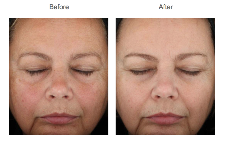 Before and After Chemical Peel