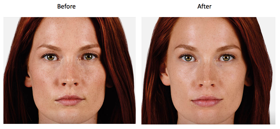 Juvederm Before and Afters