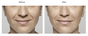 Skin Med Spa - Restylane Before and After