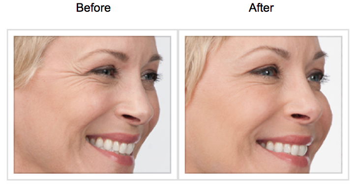 Botox Results At Skin Med Spa