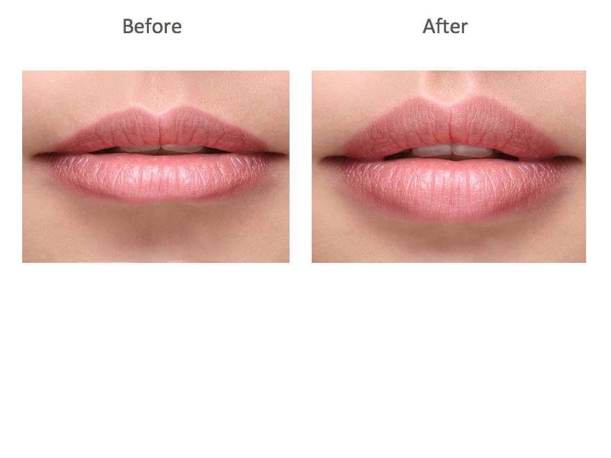 Juvederm Volbella Before and Afters
