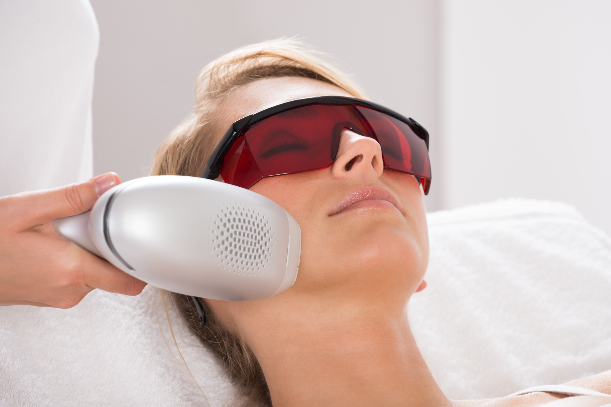 Laser treatment for hyperpigmentation
