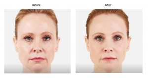 Voluma Before and Afters - Skin Med Spa