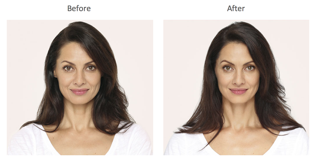 Radiesse Before and After