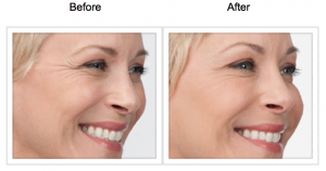 Botox Results At Skin Med Spa - Botox Before and Afters