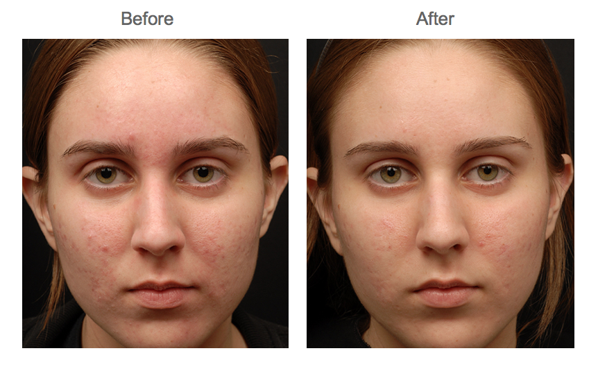 Skin Med Spa Dermaplaning Before And After
