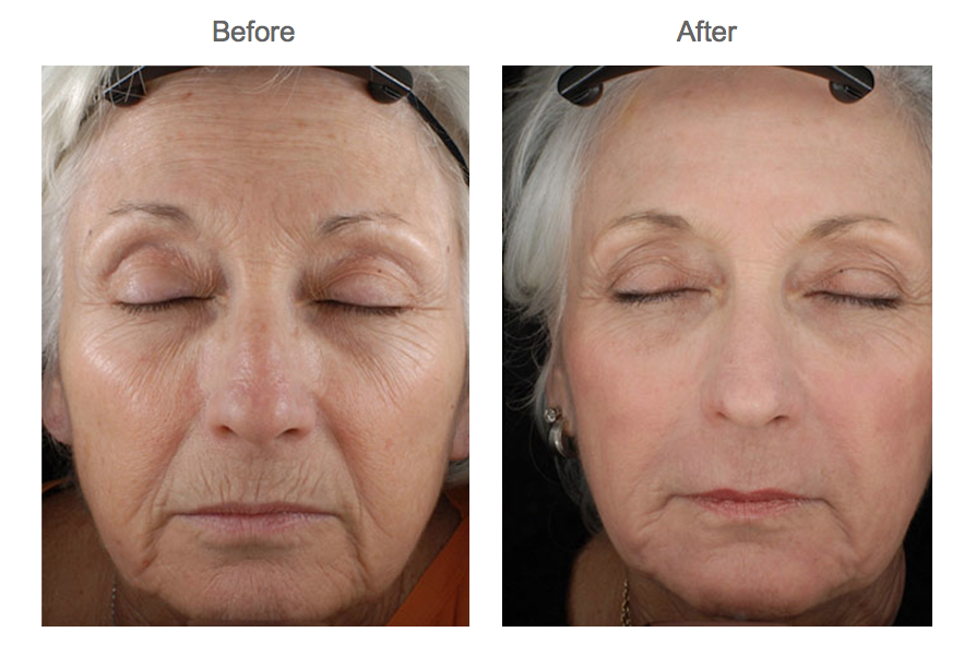 Skin Med Spa Before and After Skin Resurfacing