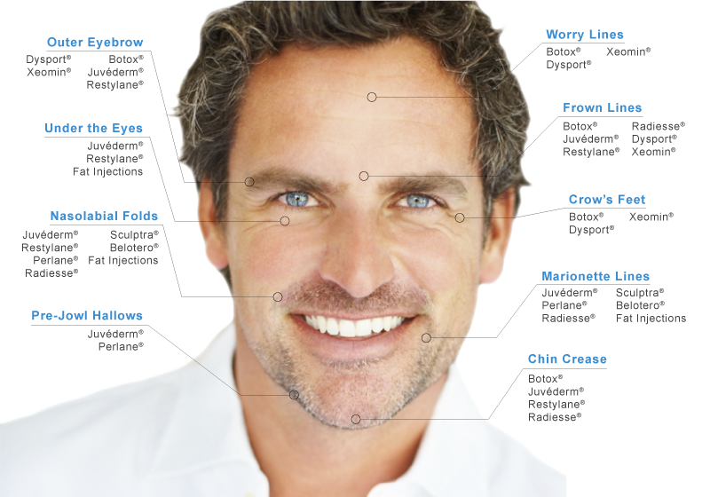 Mens Facial Filler Chart